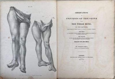 Image for Observations on injuries of the spine and of the thigh bone: in two lectures, delivered in the School of Great Windmill Street. The first in vindication of the author's opinions against the remarks of Sir Astley Cooper, Bart. The second on the late Mr. John Bell's title to certain doctrines now advanced by the same gentleman.